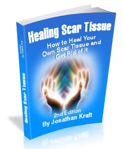 healing scar tissue book cover: how to heal your own scar tissue to get rid of it